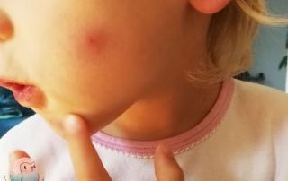 Mückenplage schnabel.auf.de